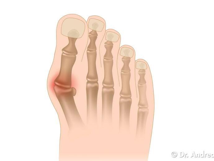 Prevenire l'alluce valgo con l'auto massaggio del piede